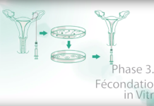 Fécondation In vitro