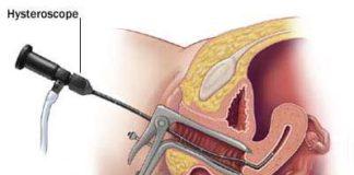 hysteroscopie