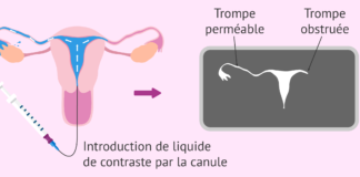 resultat de lhysterosalpingographie et obstruction tubaire