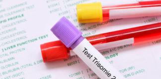 test trisomie 21